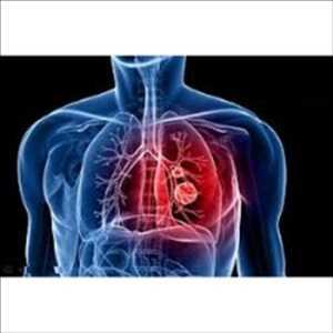 Systèmes d'administration de médicaments pulmonaires