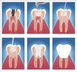Traitements d'endodontie Marché