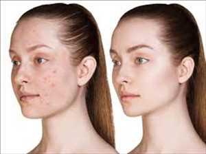 Marché mondial du traitement de l'acné