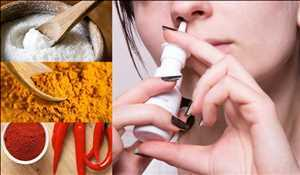 Marché mondial des médicaments contre la polypose nasale
