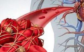 Marché des dispositifs d'agrégation plaquettaire