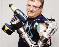 Globale Bras robotique prothétique Marché